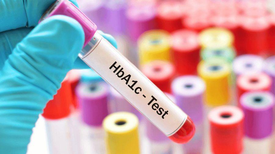 علت بالا و پایین بودن HbA۱C در آزمایش خون