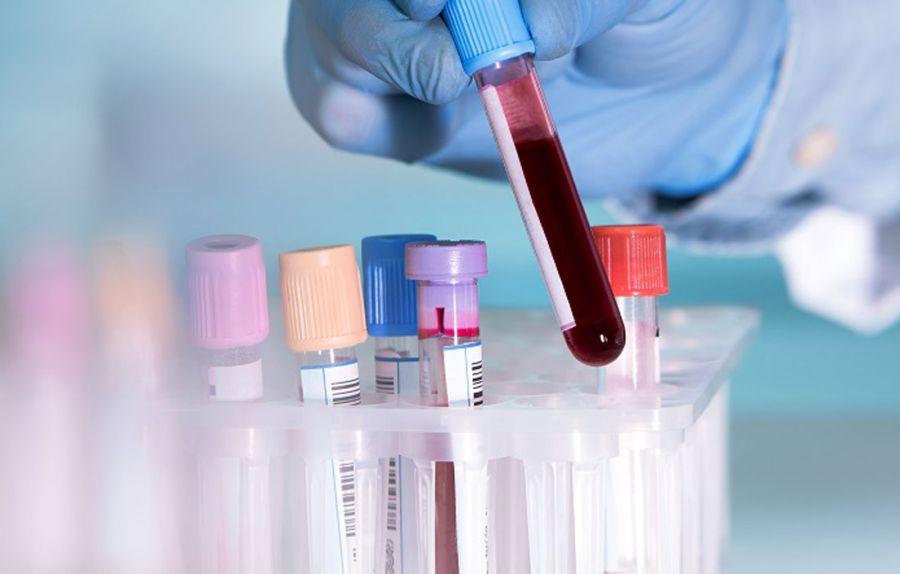 آسیل کارنتین های خون (ACs)