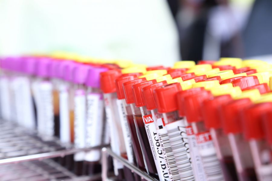 آزمایش آلدوسترون خون Alds