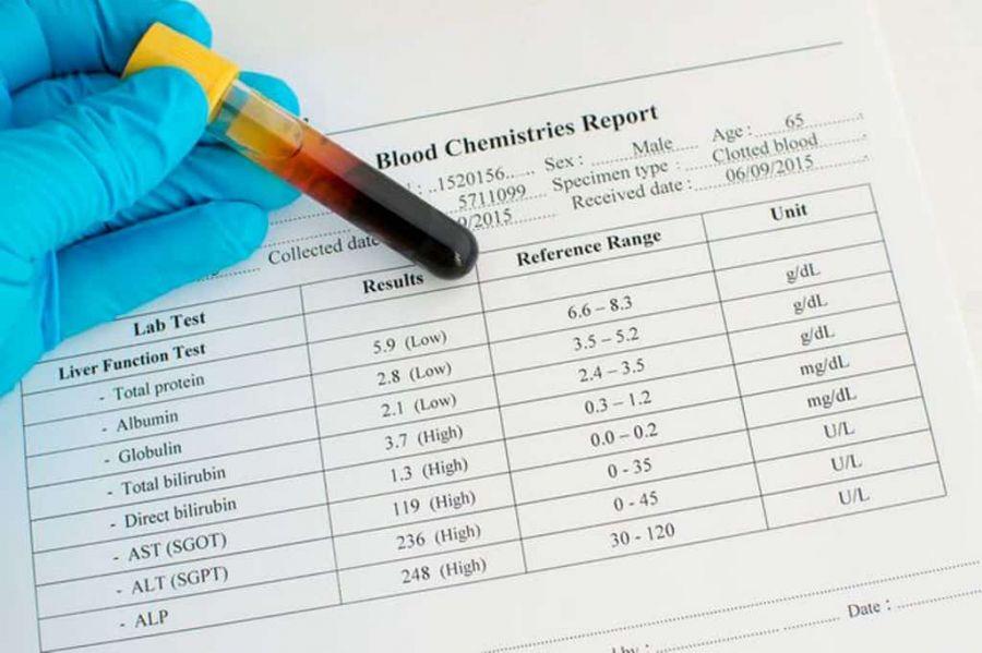 علت درخواست آزمایش آلکالین فسفاتاز (ALP)