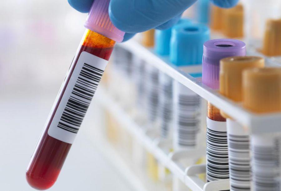 تفسیر آزمایش های غربالگری آلرژی