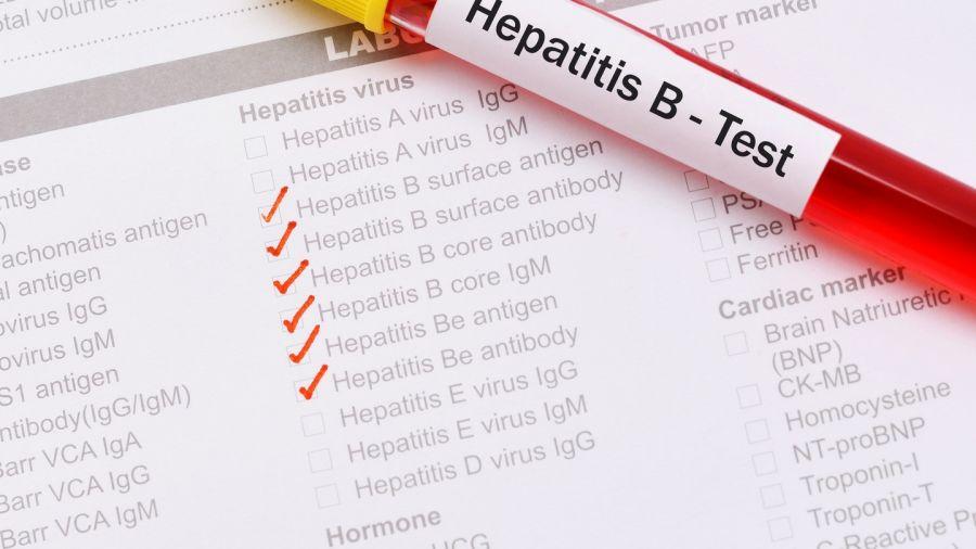 تشخیص هپاتیت B