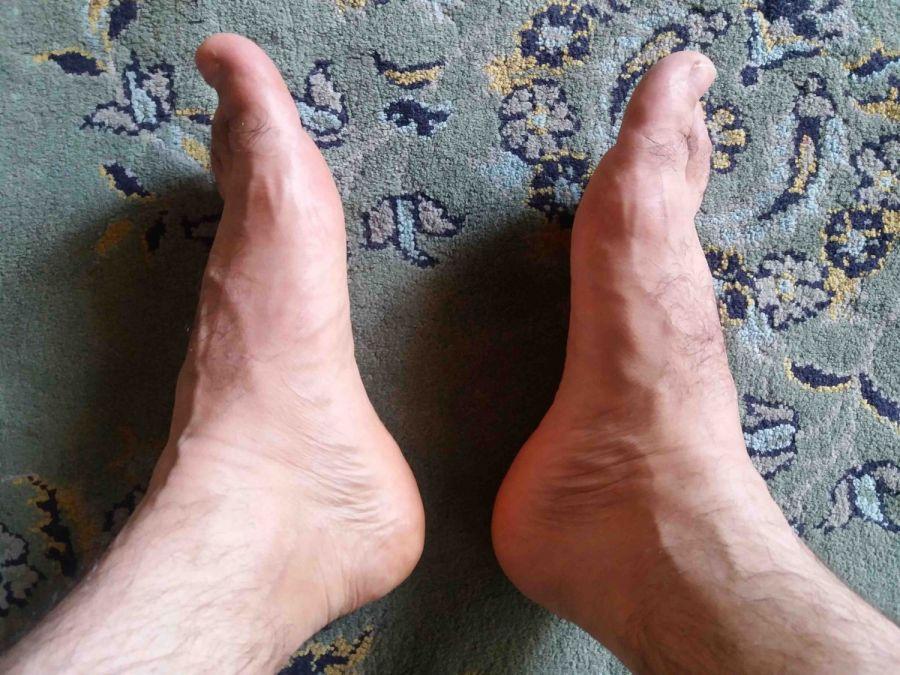 ۱۰ درمان خانگی مفید برای برطرف کردن ورم پاها