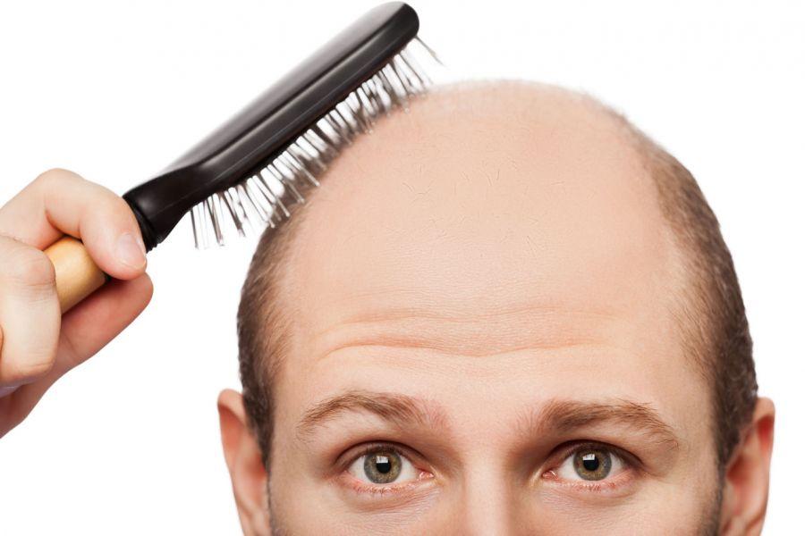 سرم ضد ریزش و تقویت مو آقایان سینره