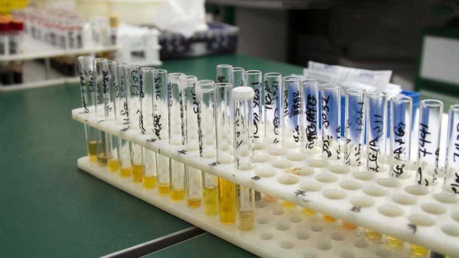 علت بالا و پایین بودن Cortisol در آزمایش ادرار
