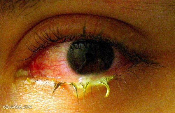 ترشحات چشمی