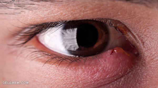 بیماری چشمی