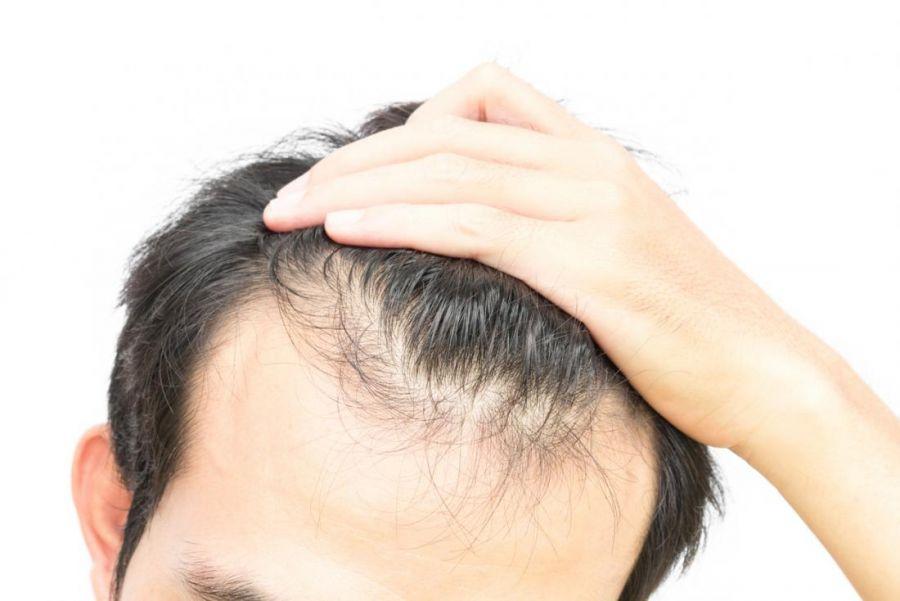 مزایای شامپو تقویتی و ضد ریزش مو سینره