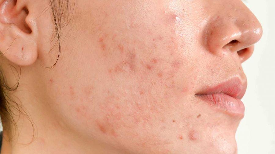 فواید بی نظیر ژل بدن مخصوص پوست های آکنهای سینره