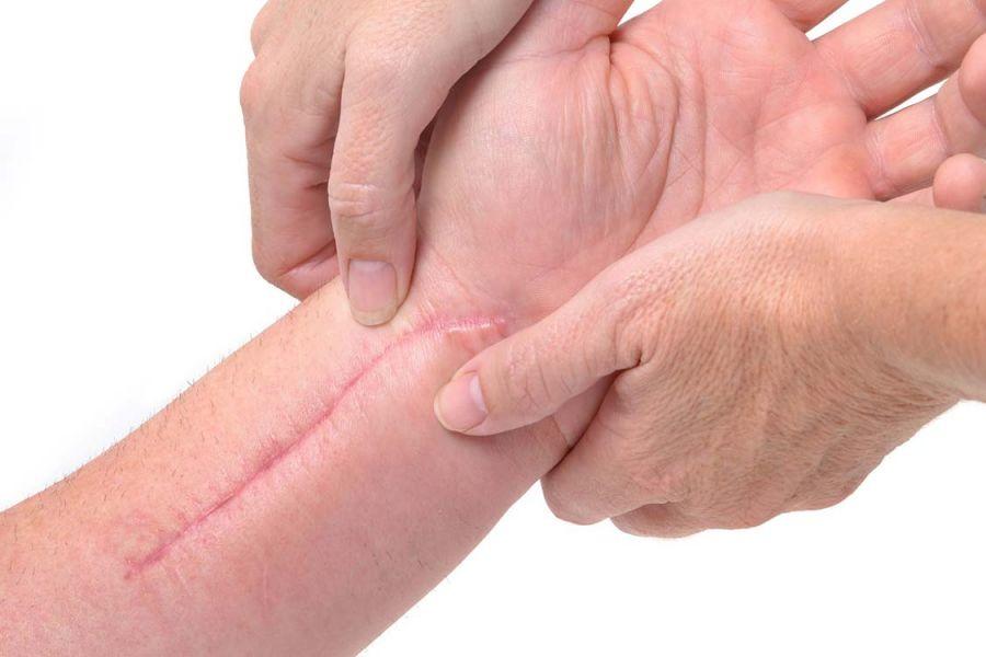 مزایای باورنکردنی کرم ترمیم کننده پوست سینره