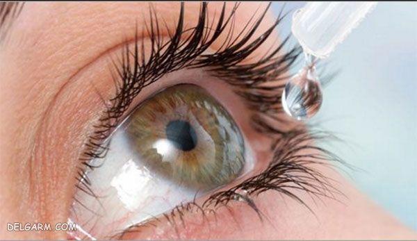 قطره چشمی