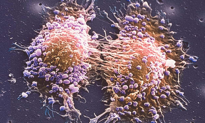 مردان قدبلند بیشتر به سرطان پروستات مبتلا میشوند