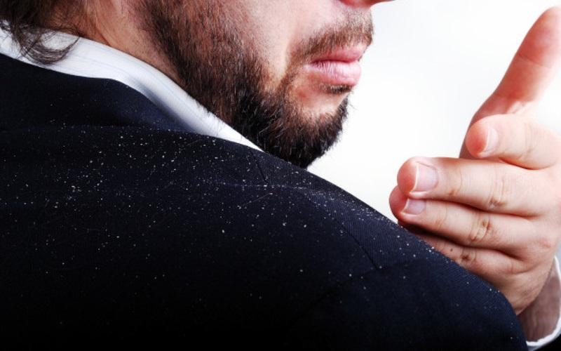 درماتیت سبوره (شوره) مو و راههای درمان آن