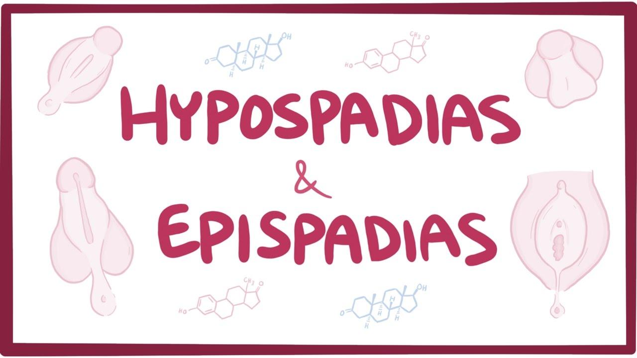 همه چیز در مورد هایپوسپادیاس (هیپوسپادیاس)