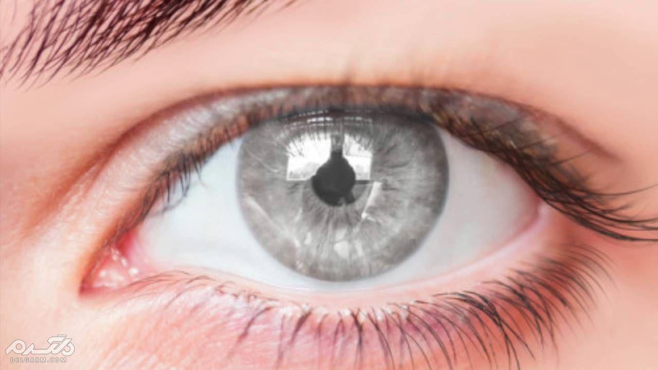 چشم خاکستری