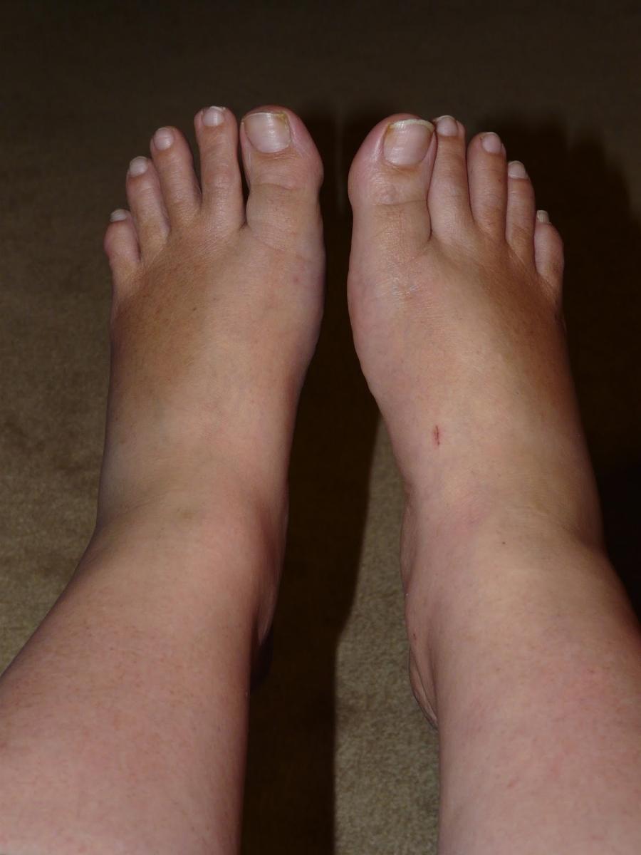 چگونه ورم پا را در خانه  درمان کنیم