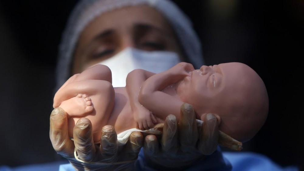 دلیل سقط جنین مکرر در دوران بارداری