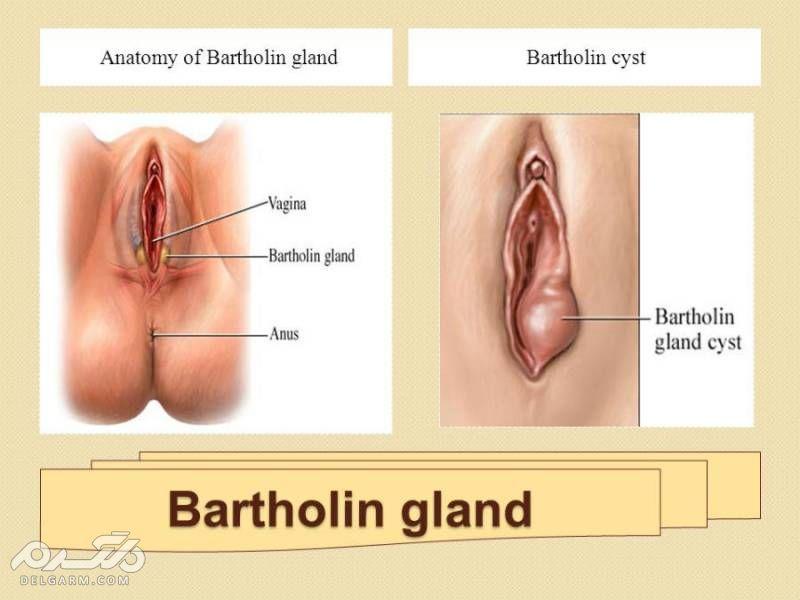 Vaginal disease