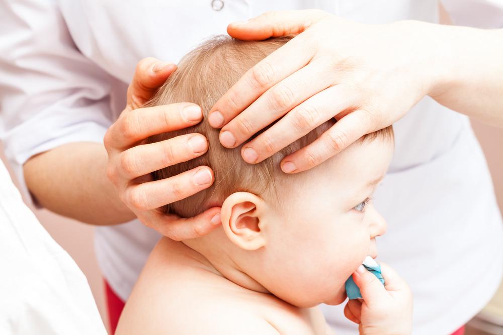 عوارض و جراحی بسته شدن زود هنگام جمجمه نوزادان