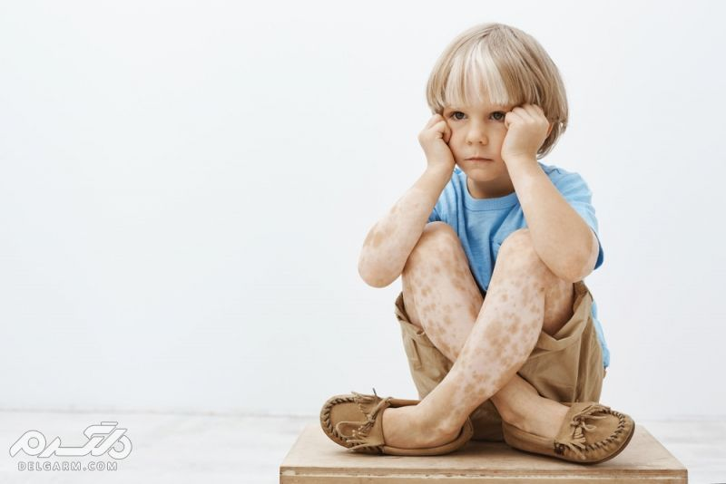 Vitiligo پیسی چیست