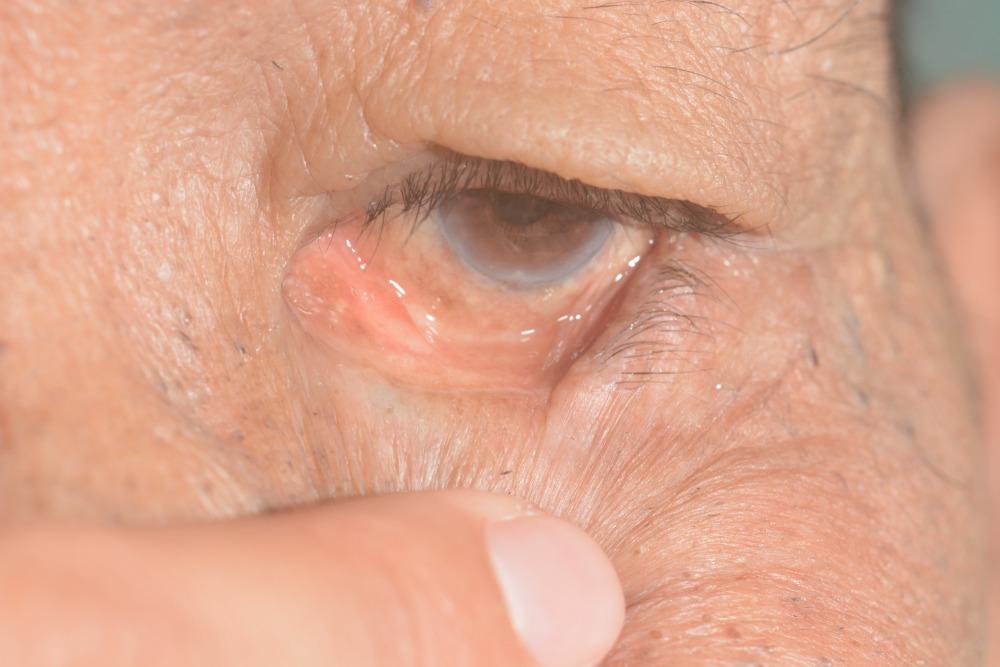 انتروپيون چیست ؟ علت برگشت پلک به داخل چشم چیست ؟
