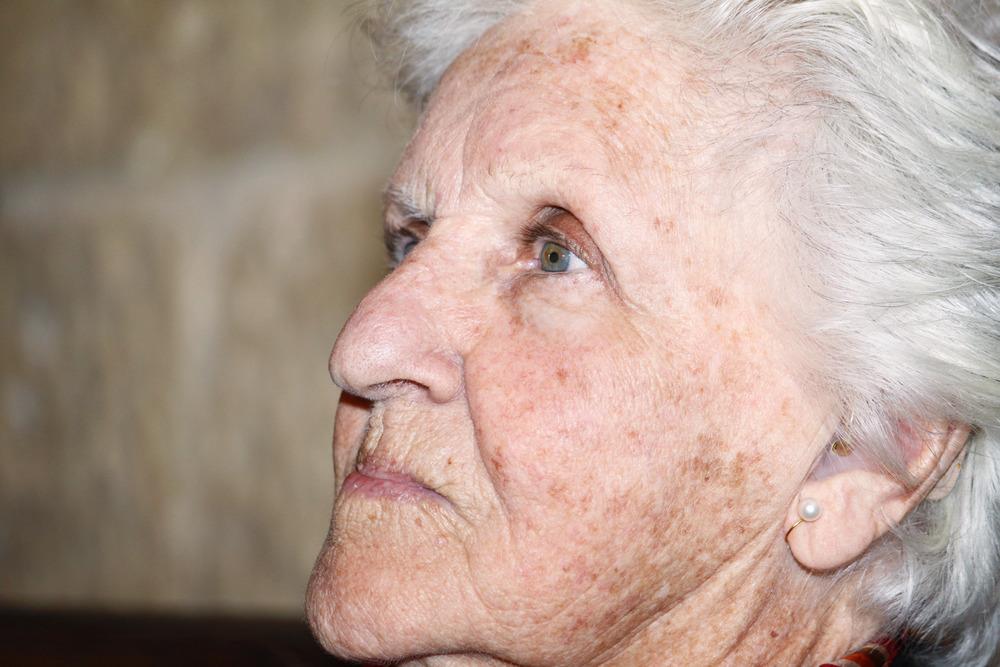 ۱۱ درمان خانگی برای از بین بردن لکه های پیری