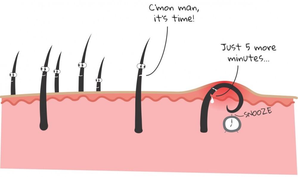 موی زیر پوستی : علت و درمان خانگی موهای زیر پوستی چیست ؟