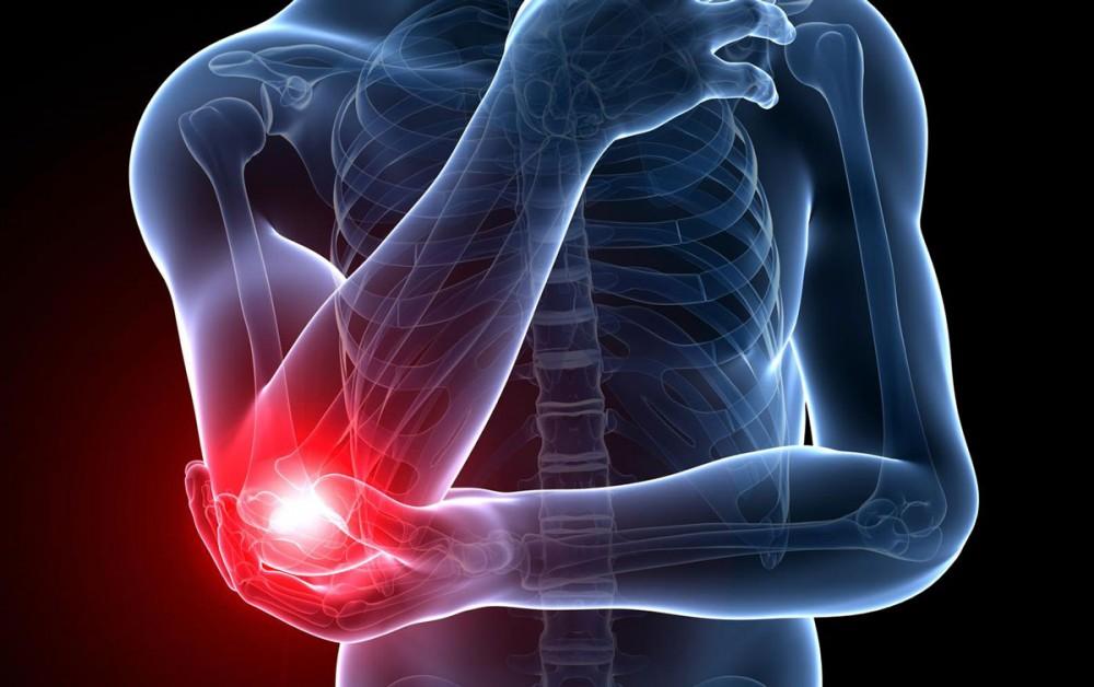 علل و علائم آرنج تنیس بازان یا بیماری تنیس البو چیست ؟