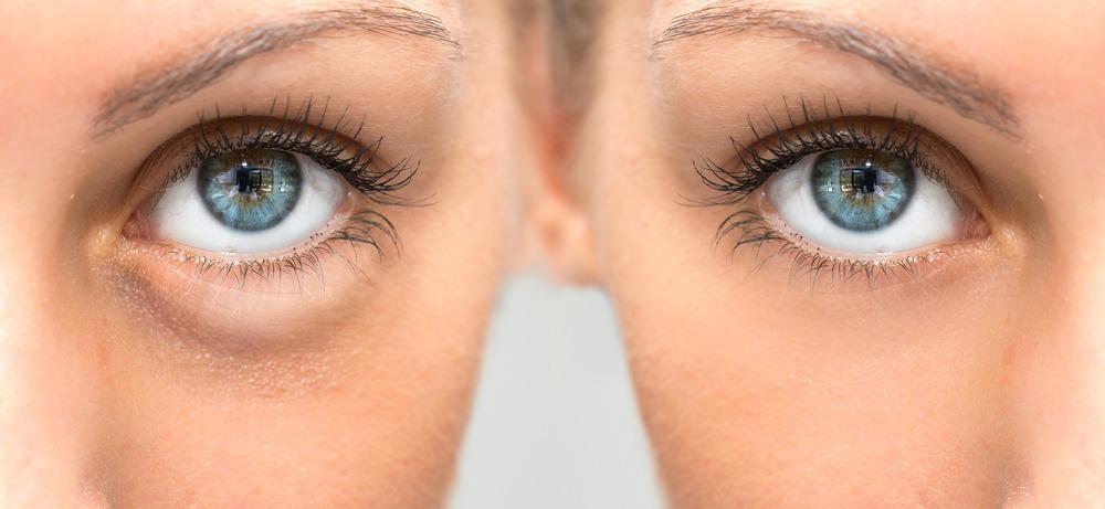 علت و درمان پف چشم بعد از خواب چیست ؟