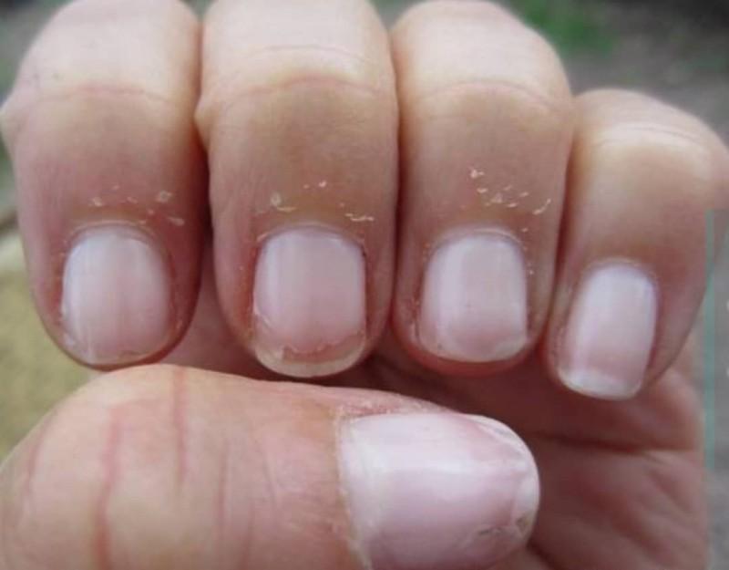 پوسته پوسته شدن اطراف ناخن نشانه چیست ؟