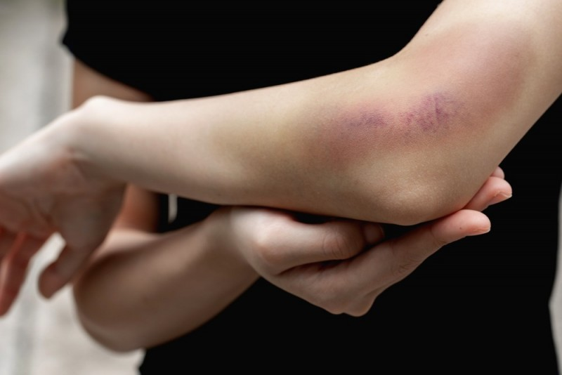 ۲۵ راهکار جادویی برای درمان سریع کبودی