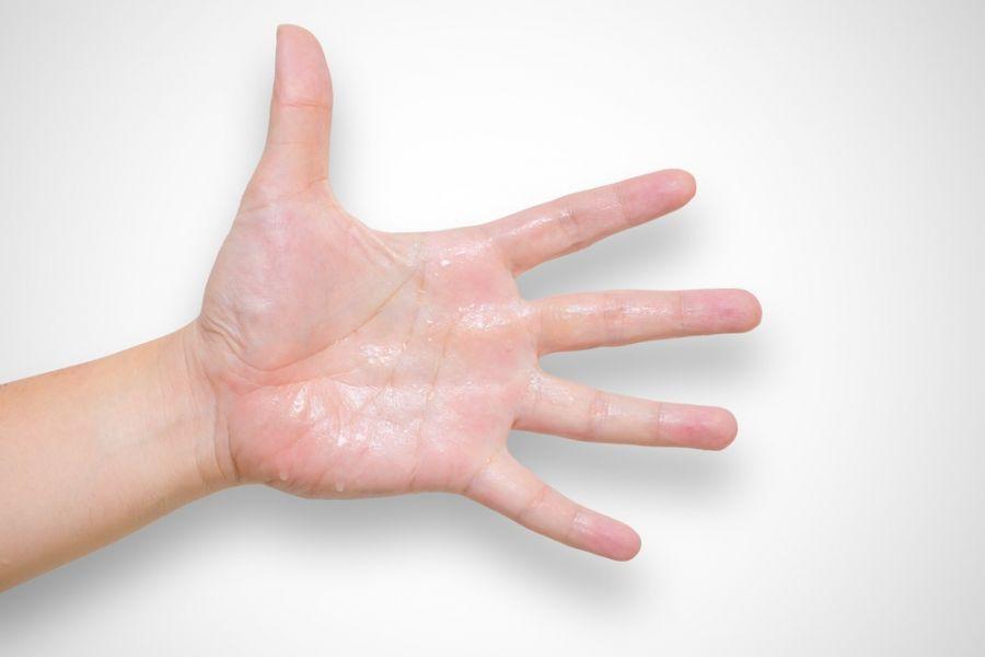 علت عرق کف دست : ۱۰ درمان قطعی عرق کردن کف دست