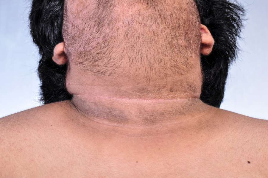 تیرگی گردن : ۱۱ درمان خانگی برای رفع تیرگی گردن