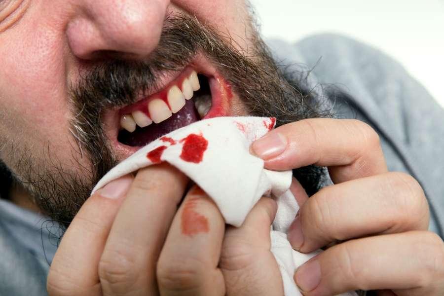 ۱۵ راهکار خانگی موثر برای درمان خونریزی لثه