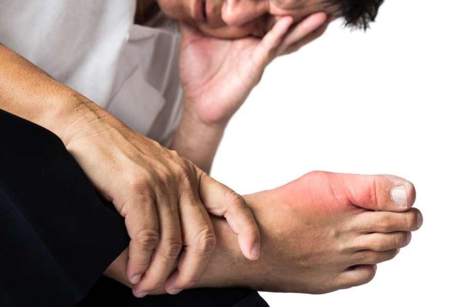 علائم نقرس پا چیست و چگونه درمان میشود ؟