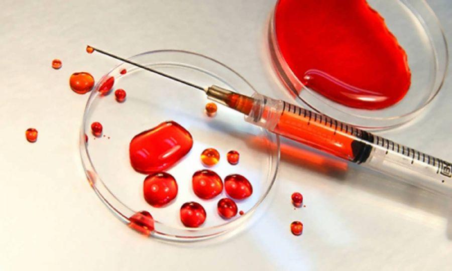 mcv در آزمایش خون نشانه چیست ؟