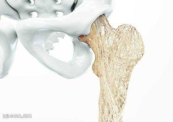 درمان حانگی پوکی استخوان