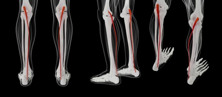 شین اسپلینت چیست ؟ ۱۱ درمان خانگی شین اسپلینت (درد ساق پا)
