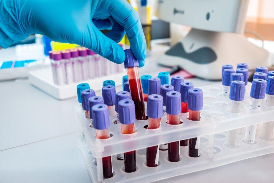 anti tpo در آزمایش تیروئید چیست و چه خطراتی دارد ؟