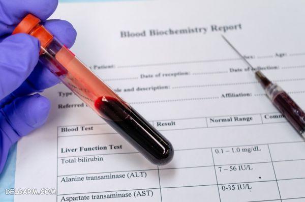 Triglyceride در آزمایش خون