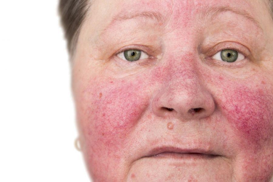 ۱۵ درمان خانگی موثر برای قرمزی پوست