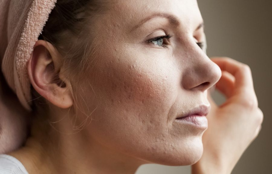 ۱۸ درمان خانگی برای از بین بردن جای جوش های سرسیاه