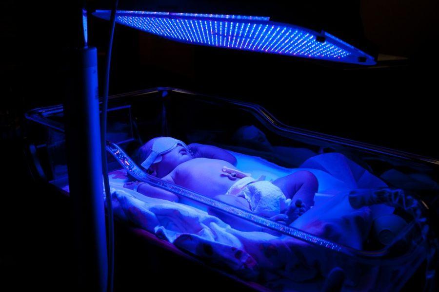 دستگاه زردی نوزاد یا فتوتراپی چیست و چه کاربردی دارد ؟
