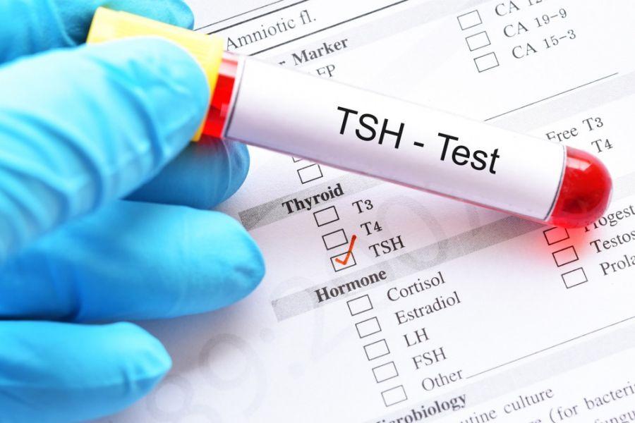 tsh  در آزمایش خون نشان دهنده تیروئید پر کار است یا کم کار ؟