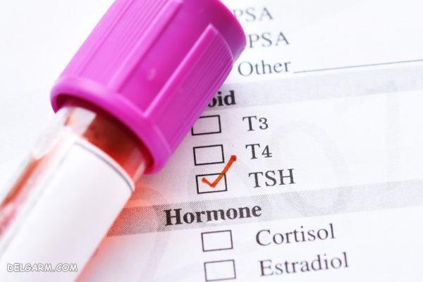 tsh نرمال چه عددی است / بالا بودن tsh / tsh نرمال / تفسیر آزمایش tsh / آزمایش tsh در بارداری / TSH در آزمایش خون