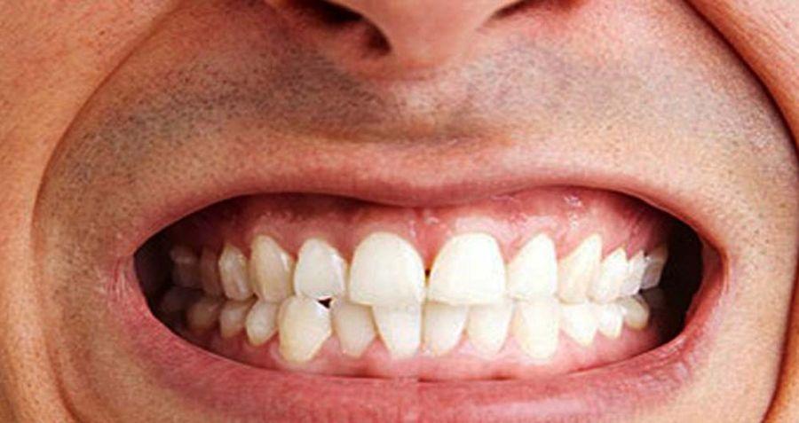 علائم و راههای درمان دندان قروچه در خواب چیست ؟