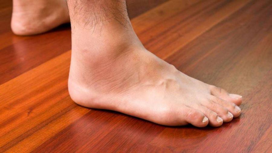 علت درد و سوزش ساق پا چیست و چگونه درمان میشود ؟