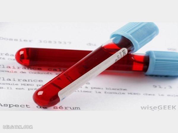 mpv در آزمایش خون