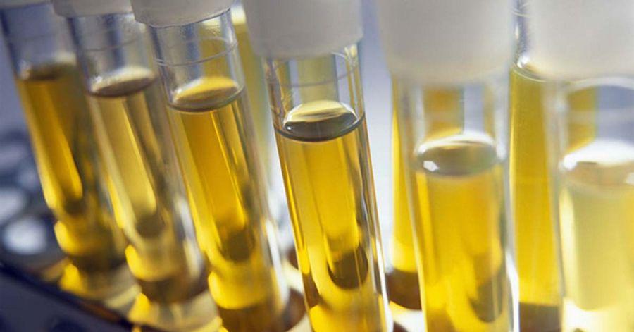 وجود پروتئین در آزمایش ادرار نشانه چیست ؟
