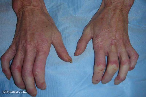 / بیماریهای پوستی /اختلالات مختلف پوستی